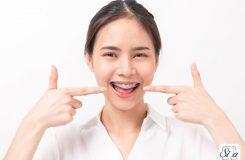مراقبت های بعد از ارتودنسی دندان 1